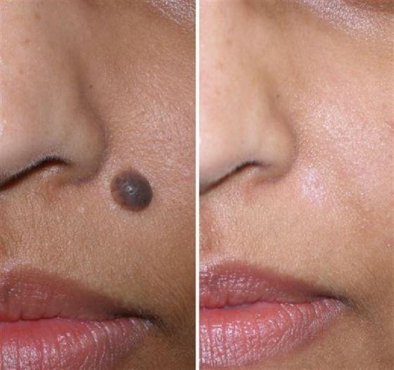 Как удалить бородавку на носу в домашних условиях