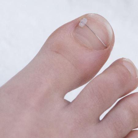 Как лечить наросший ноготь