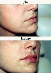 restylane injection2